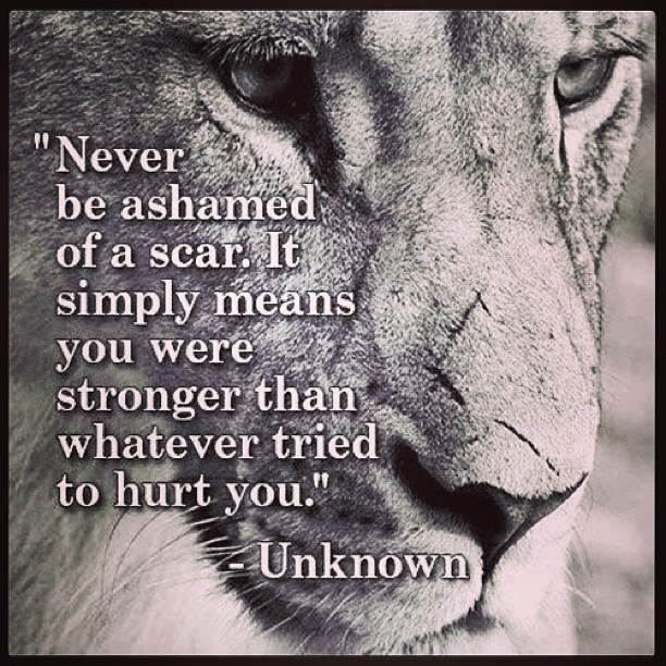 Ashamed quote Never be ashamed of a scar. It simply means you were stronger than whatever trie