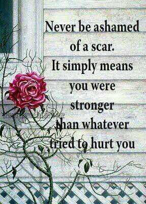 Ashamed quote Never be ashamed of a scar, It simply means you are stronger than whatever tried